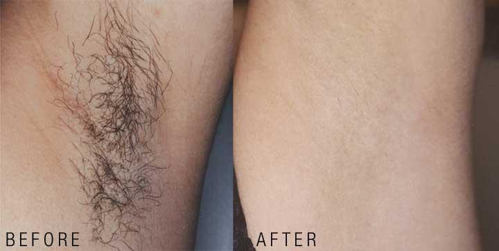Hair Removal Armpits