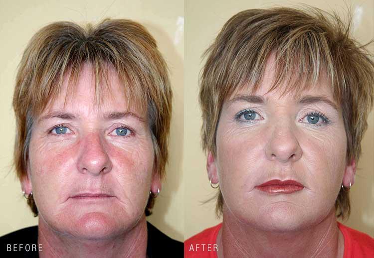 Makeover FullFace Botox