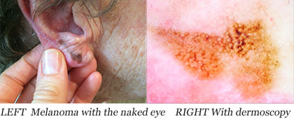 Melanoma Dermoscopy