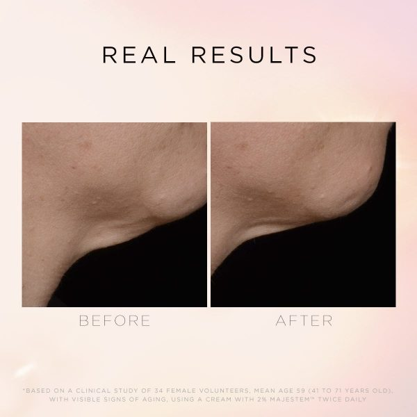 Illuminate & Lift Before and After